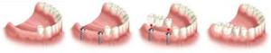 dva-implantaty (1)